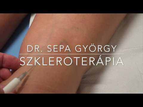 visszér kezelés szkleroterápia ára