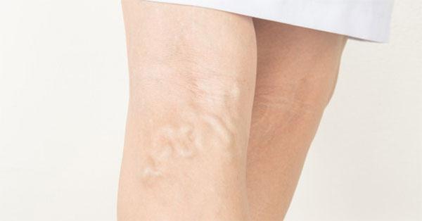 hideg zuhany a visszeres lábak számára visszér férfiaknál, okai és kezelése