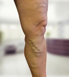 Szimpatika – Visszérműtét után sem kell felhagynia az edzéssel