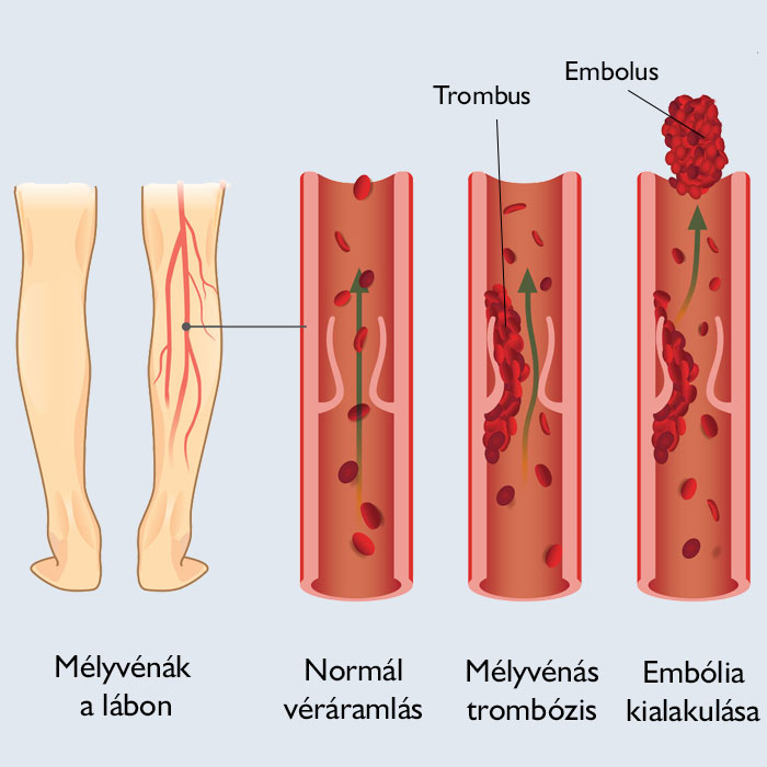 lábműtét vérrögök visszér fekete lábak a visszérben