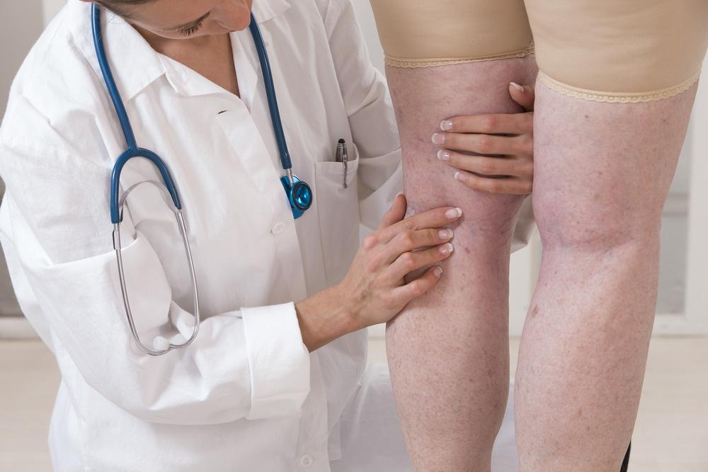 visszér a lábakon kezelési módszerek Iyengar visszér