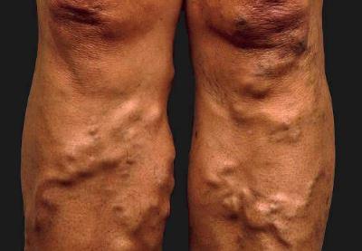 hogyan kezeli a visszerek a lábakon?