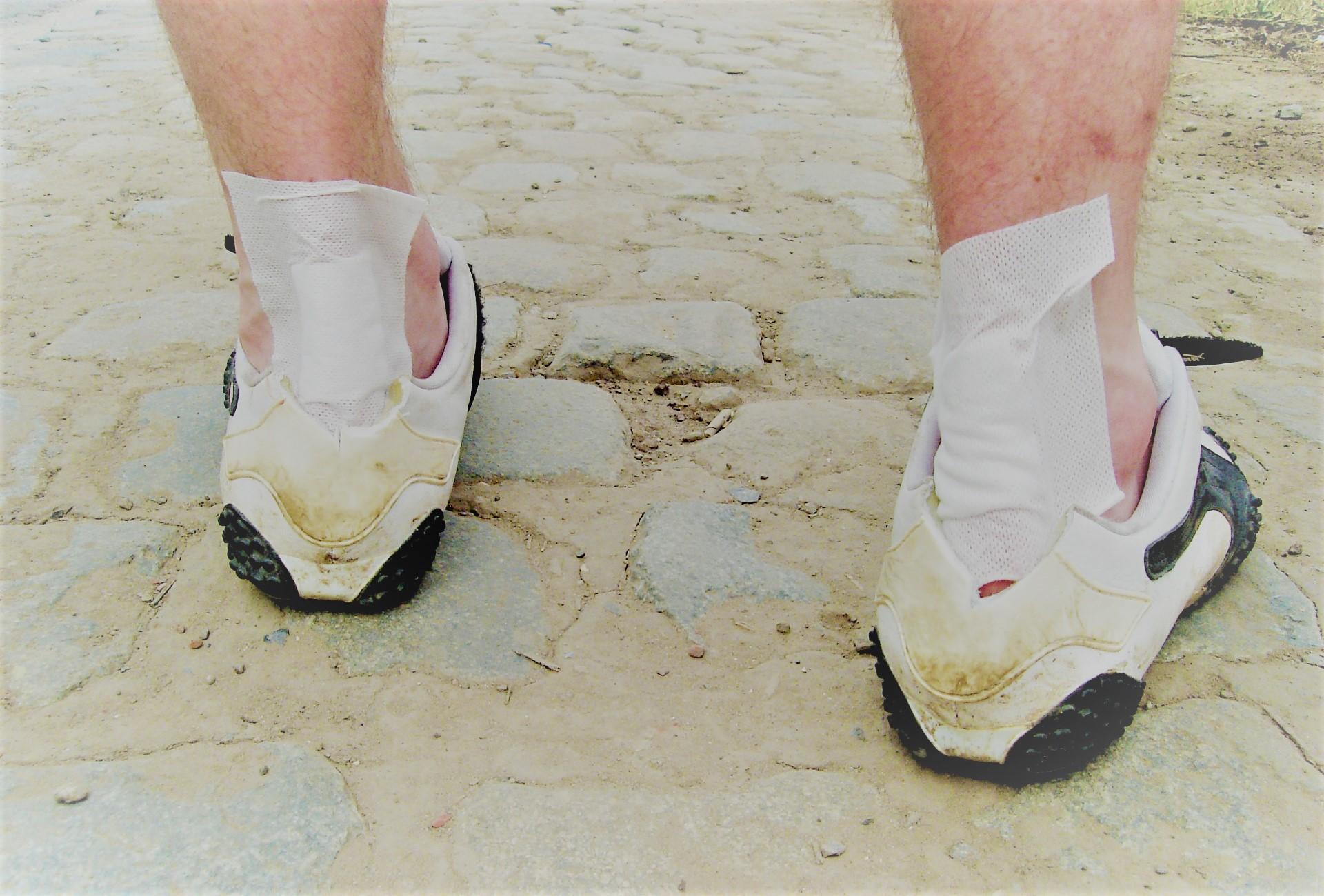 kezeli a lábak visszérgyulladását