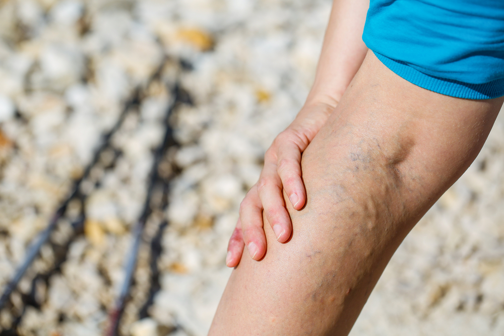 Vérrögök a testünkben: milyen tünetek utalnak rá?