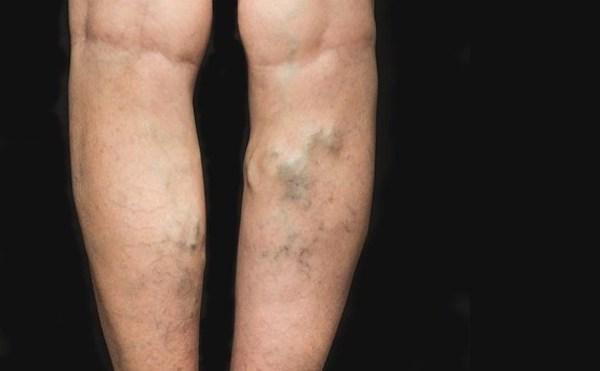visszér a lábakon lézerrel visszér kezelése hidrogén-peroxiddal