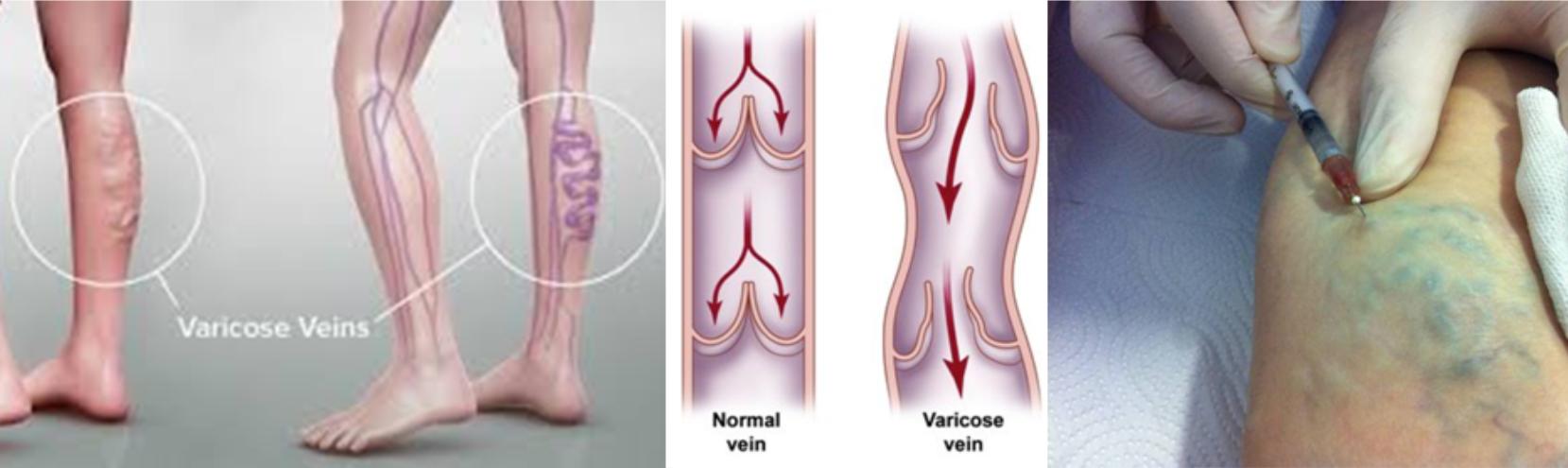 visszér és kötés rugalmas kötés test visszér kezelése