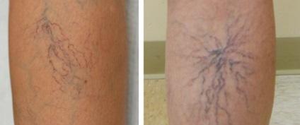 visszér a bőr striáival