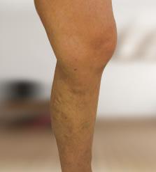 lábműtét visszér obninszkben szkleroterápia a visszér kezelésében
