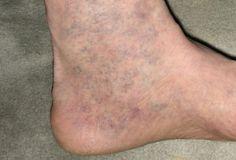 visszér tehető visszerek kezelése duzzadt lábak