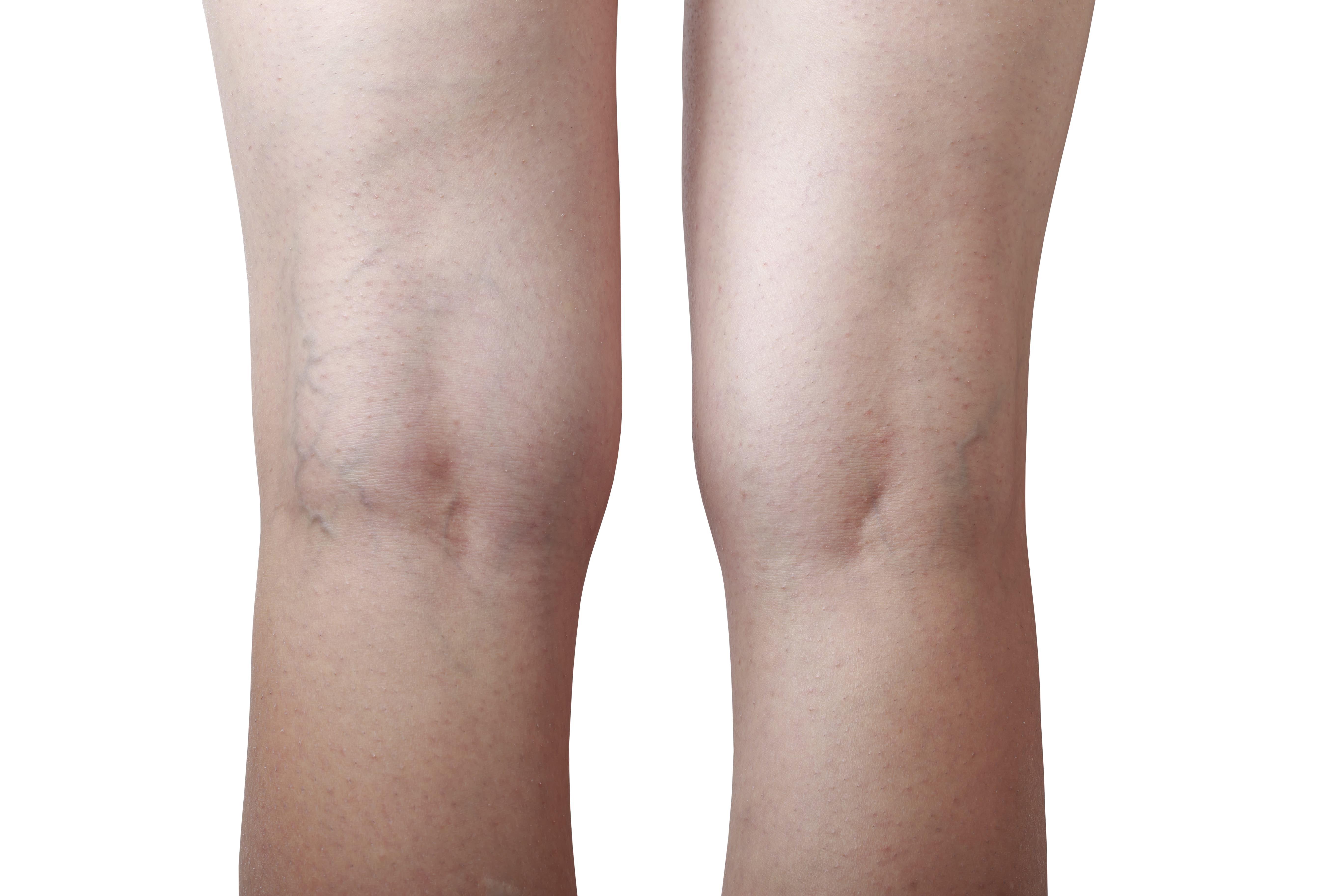 a lábak bizsergése visszér