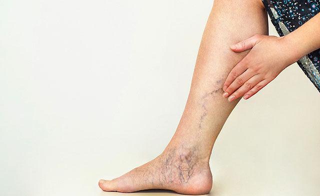súlyos fájdalom a visszerek lábain
