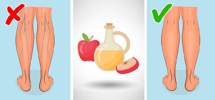 olívaolaj visszér kezelés