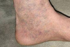 visszér a lábakon a kezelés kezdeti szakasza dörzsölje az almaecetet a visszér ellen