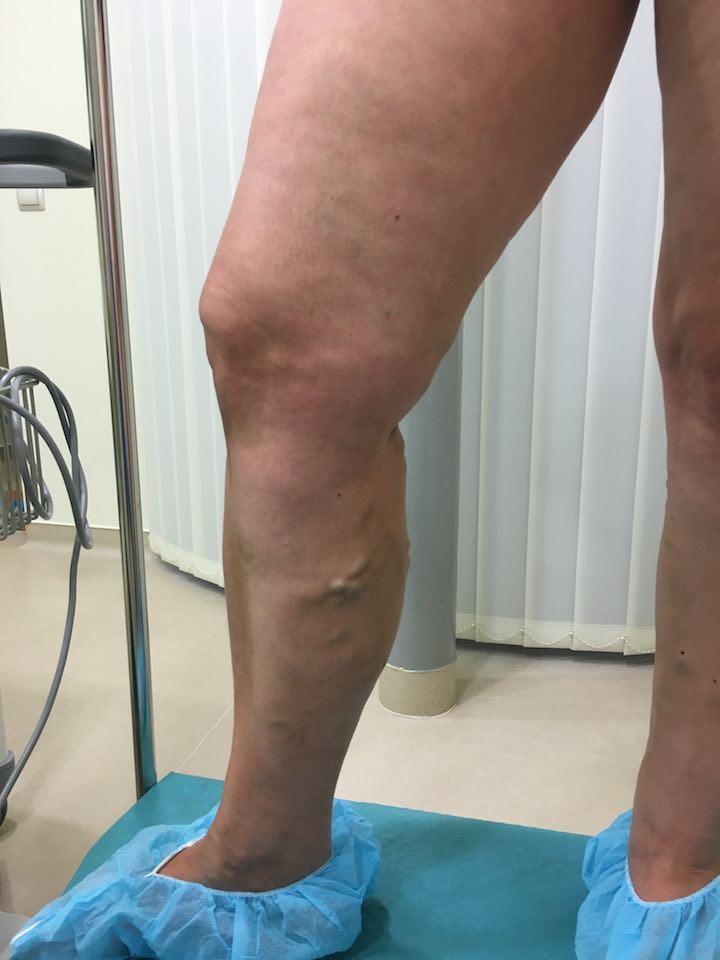 fotó a lábakon lévő visszérműtét után hogyan lehet edzeni visszerekkel