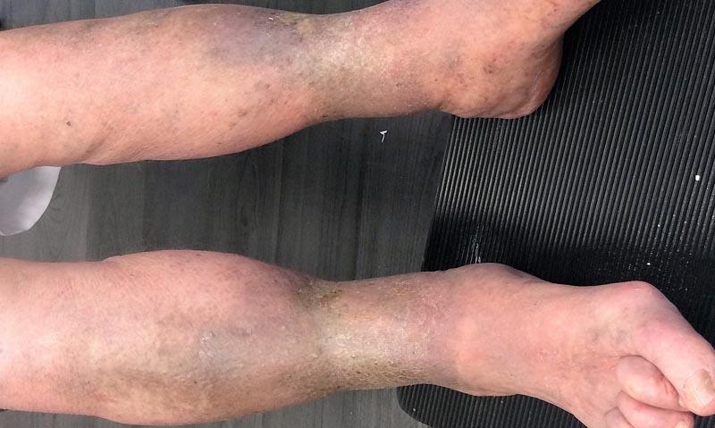 sebek a lábakon visszér kezeléssel