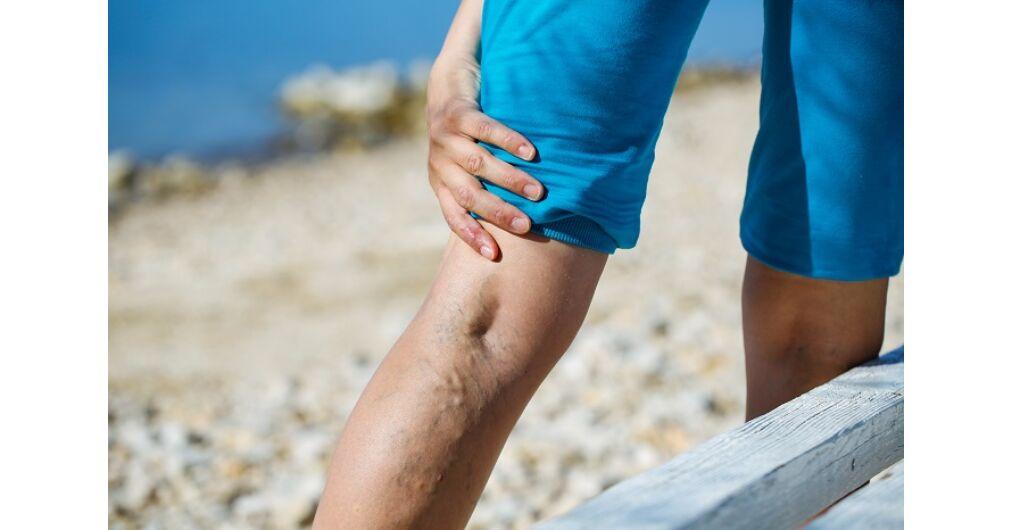krém visszér és vénák ellen visszér a lábakon orvosi kezelés