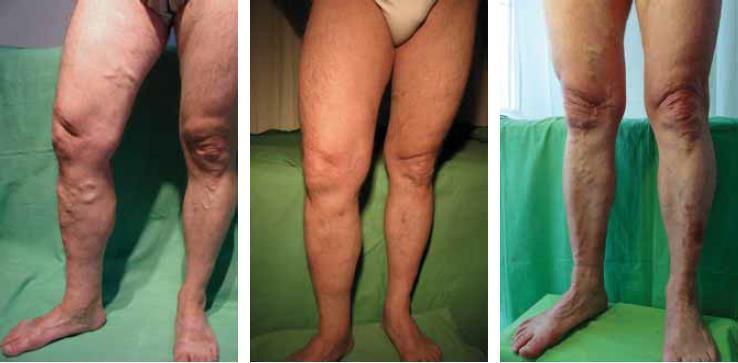 rehabilitáció visszér műtét után lézerrel görcsös visszér