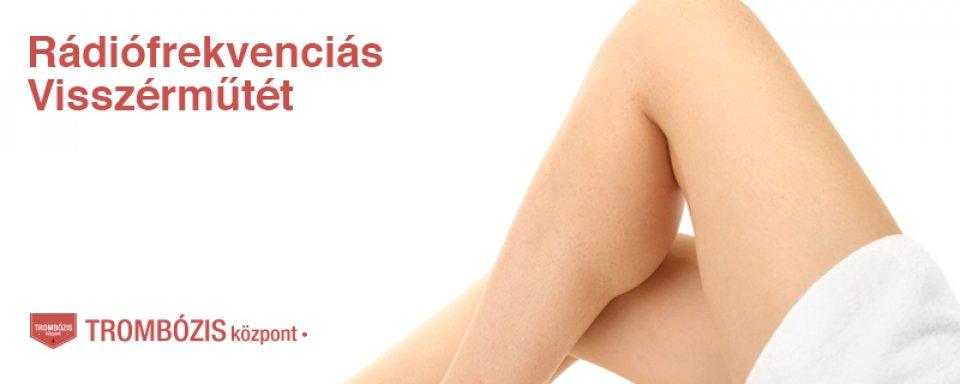 piócák visszér kezelése séma visszér tünetek fotó és kezelés