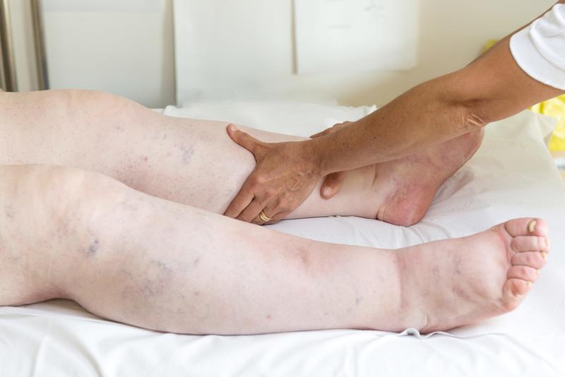 a bal láb duzzanata visszeres dörzsölhető-e a visszér