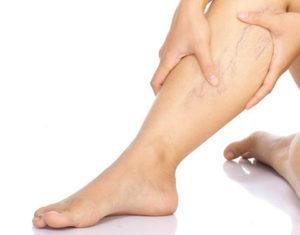 tömöríti a visszér burgonya vélemények a lábak visszér alternatív kezeléséről