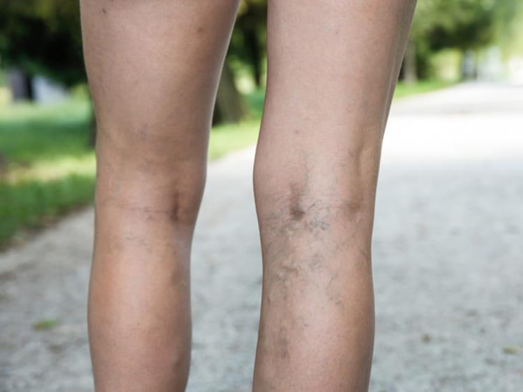 visszér, mi történik a lábakban