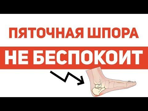 a láb visszérének kenőcsének kezelése