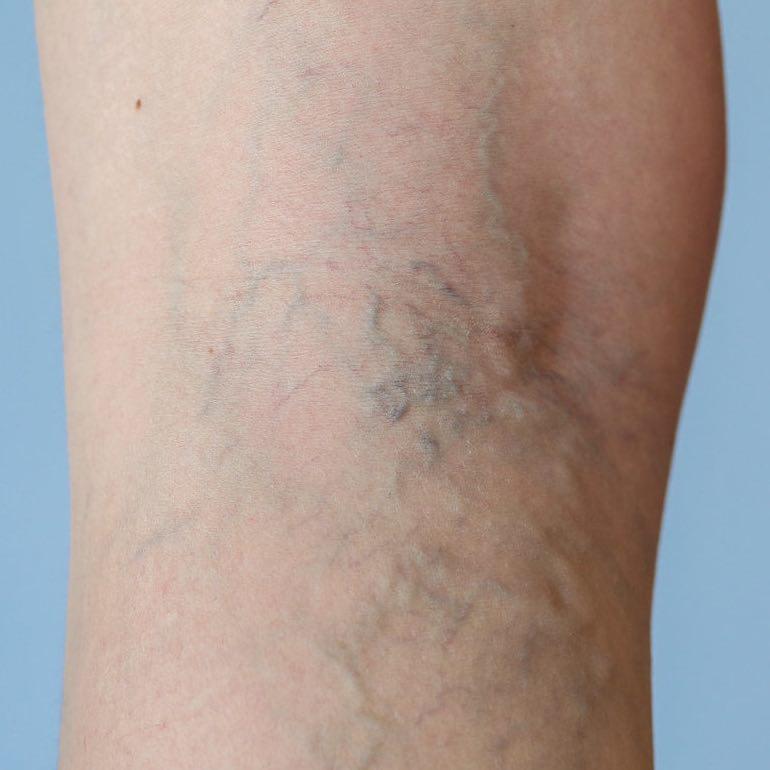 A lábszárfekély tünetei