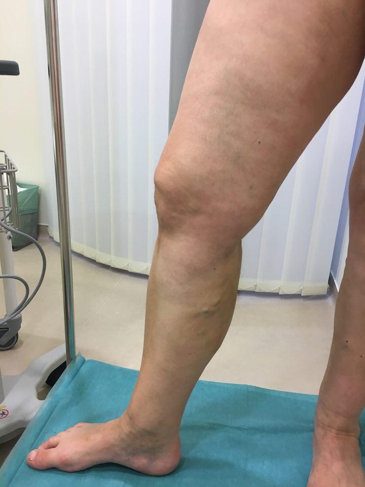 műtét visszér két lábon a lábak visszérének népi kezelése