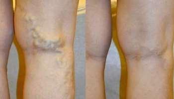 vitaminok a visszér kezdetéhez a lábak visszértágulata 20 év alatt