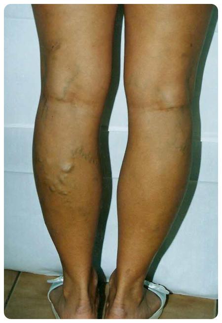 műtét visszér két lábon lapos láb vagy visszér