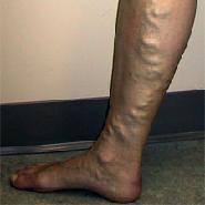 videotorna visszér ellen visszér a lábakon fekélyek kezelése