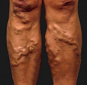 a visszér duzzanata speciális torna a varikózisos lábakra