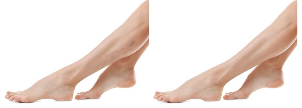 visszér gyönyörű lábak visszér kenőcs a p