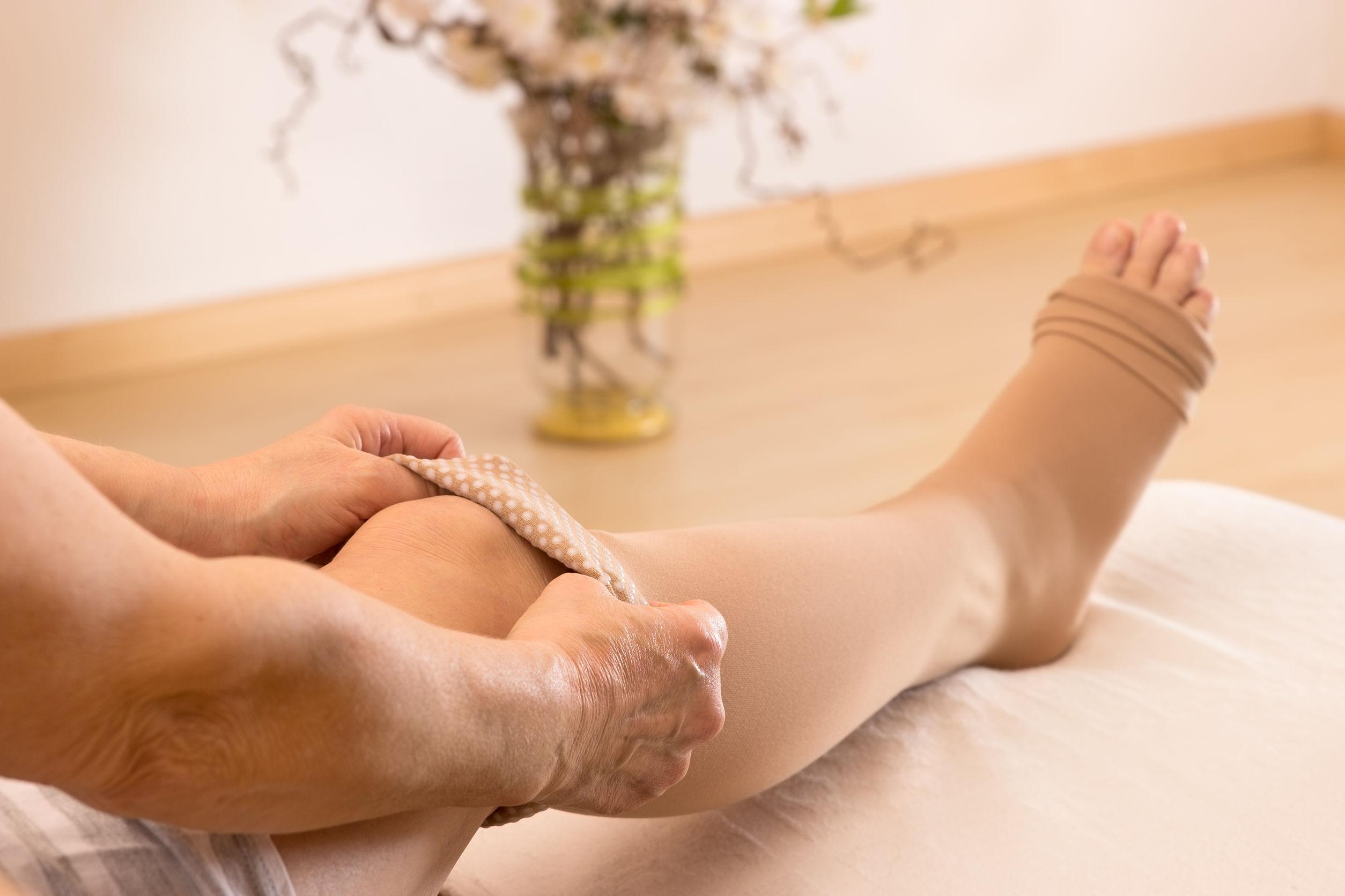 test visszér kezelése visszeres rézharisnya