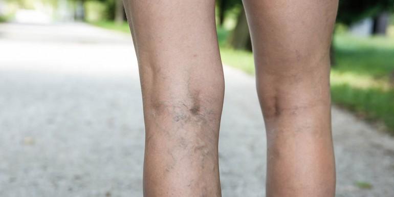atrófiás visszér görcsrohamtól kapott visszér elleni tabletták