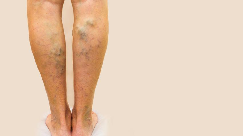 visszér és gyógymódok a kezek varikózisának jelei
