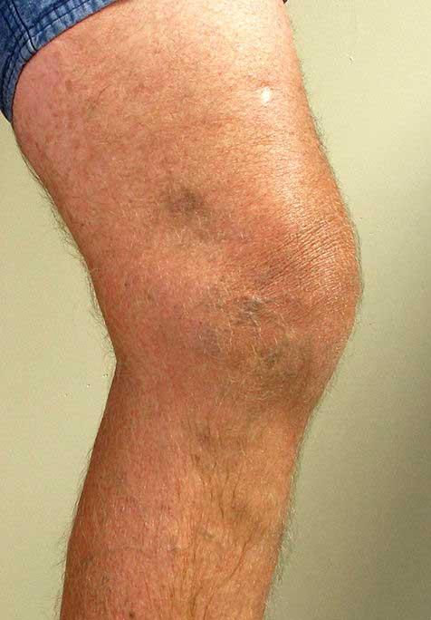 visszér, ha egy vénának fáj, mit kell tennie visszerekkel csökkenti a lábakat, mint kezelni