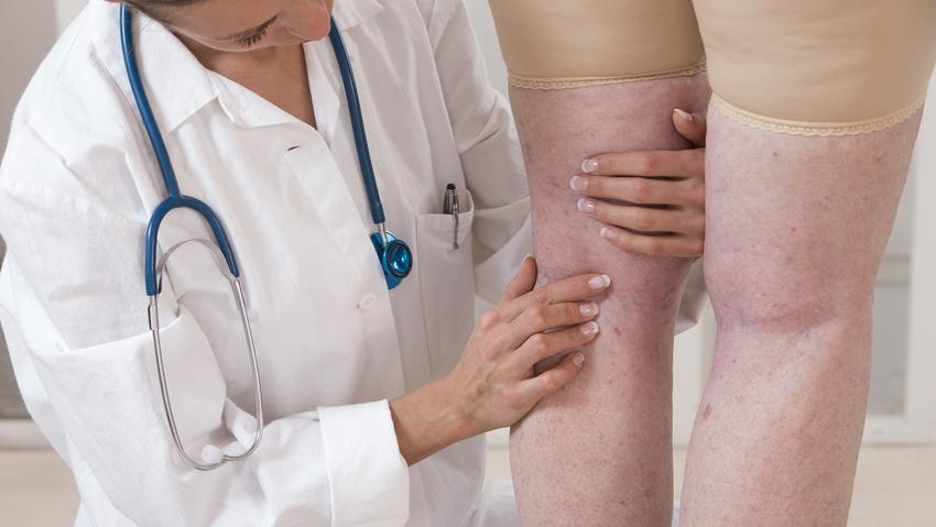 visszér a bokán hogyan kell kezelni visszerek a lábakon felnőtteknél