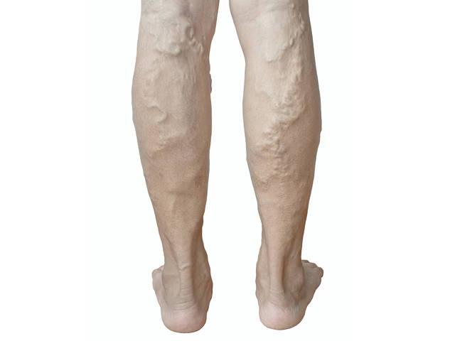 éghetnek-e a lábak visszérrel