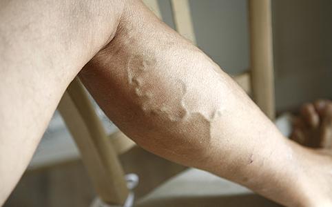 visszér vagy csak vénák hogyan kell altatni a varikózisos lábakat