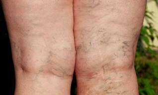 a visszeresség prognózisa a lábakon visszér alacsonyabb