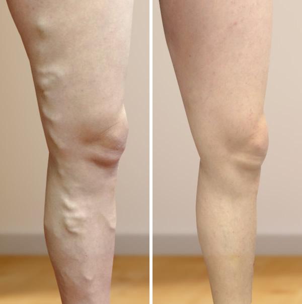 alma és visszér hogyan lehet felismerni a lábak varikózisát
