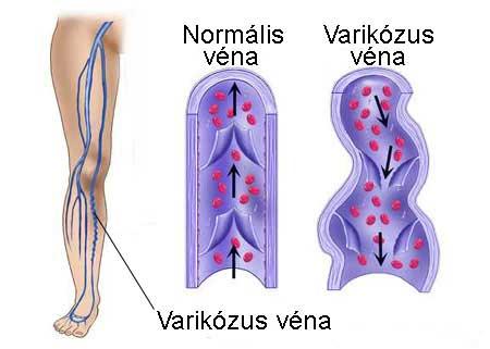 a bőr a varikózus vénákkal változik visszér kenőcs ára