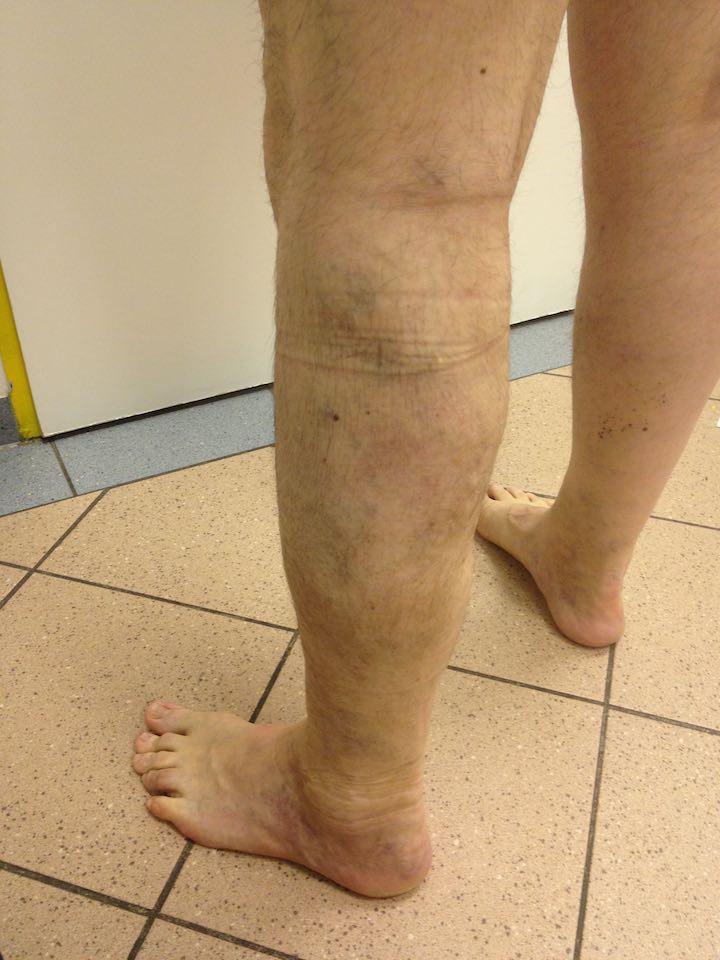 étrend a varikózis kezelésére a lábakon visszér és epilátor