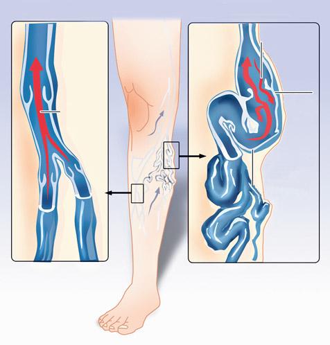 a lábak visszérének népi kezelése