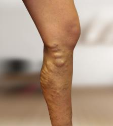 visszérgyulladás az egyik lábát