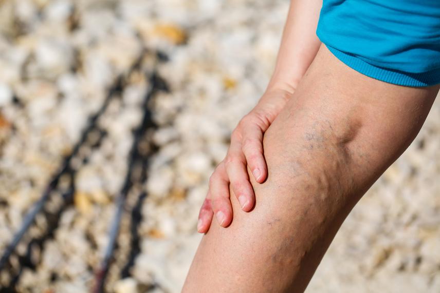 a lábak sötétedése visszeres fotóval speciális torna a varikózisos lábakra