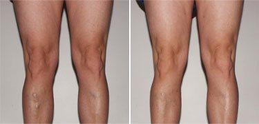 a bőr sötétedése a visszeres lábakon