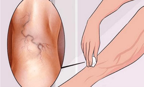 a lábak varikózus vénái, mint amelyekre veszélyes a láb artériák visszér