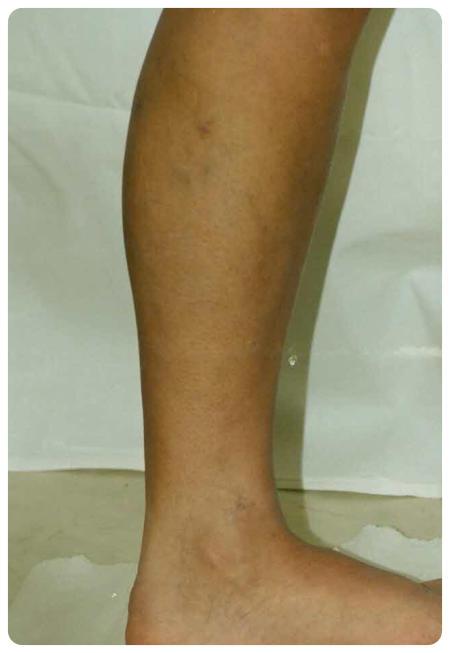 torna műtét után láb visszér otthoni visszérgyógyítás lehetséges